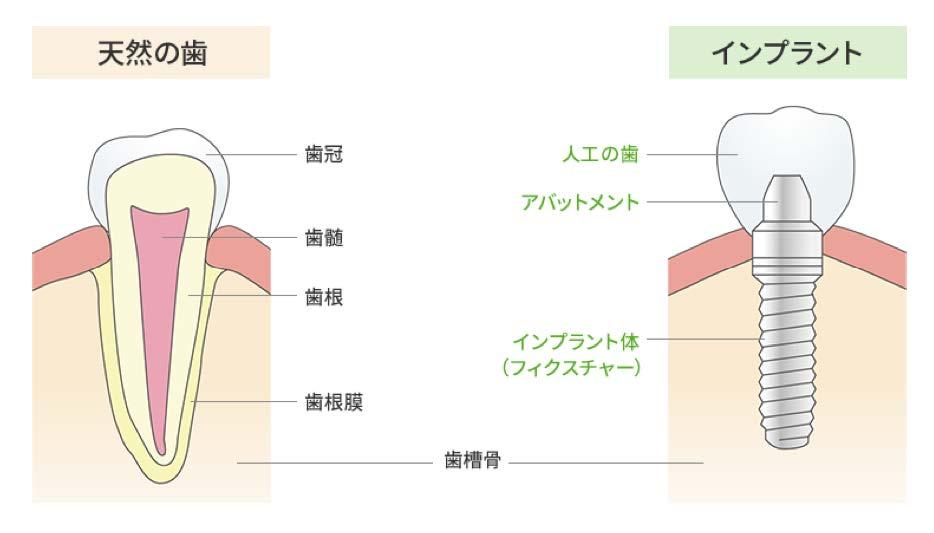 インプラントと天然の歯